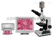 視頻型生物顯微鏡電腦顯微鏡三目生物顯微鏡